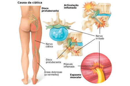 Dor no nervo ciático | Massagem São Paulo Guarulhos